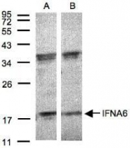 NBP1-31156 - IFNA6 / Interferon alpha-6