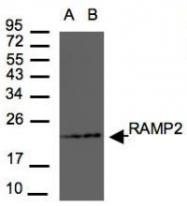 NBP1-31162 - RAMP2