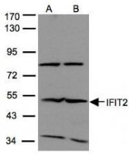 NBP1-31164 - IFI54 / IFIT2