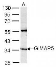 NBP1-31165 - GIMAP5