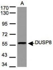 NBP1-31169 - DUSP8 / VH5