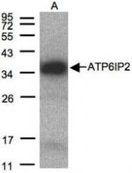 NBP1-31173 - Renin receptor