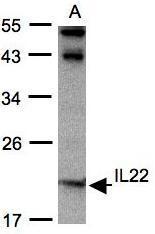 NBP1-31191 - Interleukin-22 / IL22