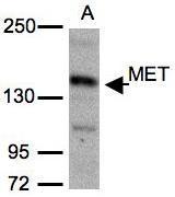 NBP1-31202 - RNMT