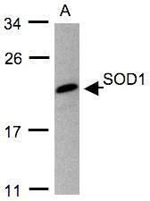 NBP1-31204 - Superoxide Dismutase 1 / SOD1