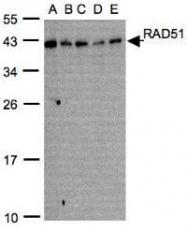 NBP1-31205 - RAD51