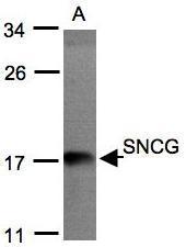 NBP1-31209 - Gamma-Synuclein / SNCG