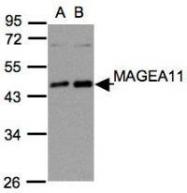 NBP1-31210 - MAGE-11