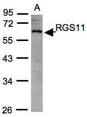 NBP1-31212 - RGS11