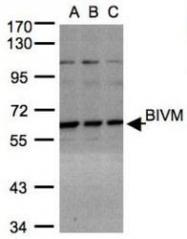 NBP1-31214 - BIVM
