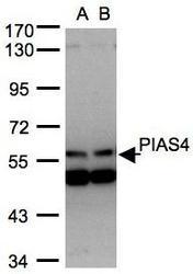 NBP1-31215 - PIAS4
