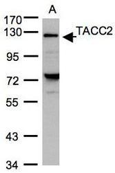 NBP1-31221 - TACC2