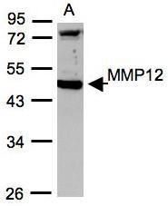 NBP1-31225 - MMP-12
