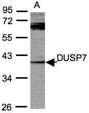 NBP1-31232 - DUSP7 / PYST2