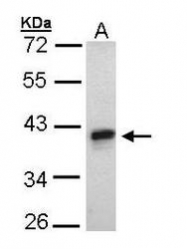 NBP1-31239 - GPER / GPR30