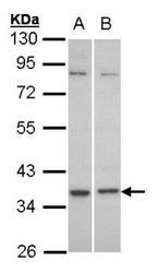 NBP1-31240 - GPR77 / C5L2