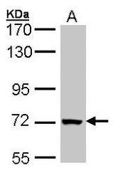 NBP1-31241 - PCK2