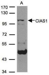 NBP1-31245 - NALP3