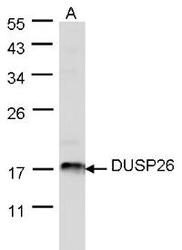 NBP1-31254 - DUSP26