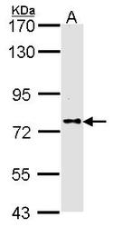 NBP1-31256 - DPP8 / DPRP1