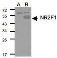 NBP1-31259 - NR2F1