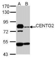 NBP1-31261 - AGAP1 / CENTG2