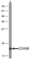 NBP1-31303 - Complex IV subunit Vb