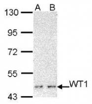 NBP1-31314 - WT1 / Wilms tumor protein