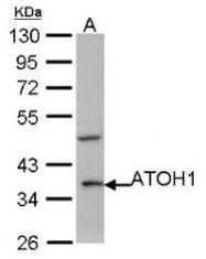 NBP1-31318 - ATOH1