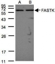 NBP1-31323 - FAST kinase