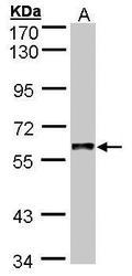 NBP1-31327 - Vimentin