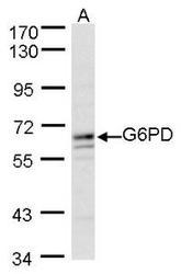 NBP1-31328 - G6PD