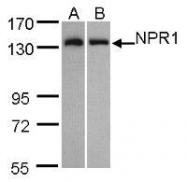 NBP1-31333 - NPR1 / ANPRA