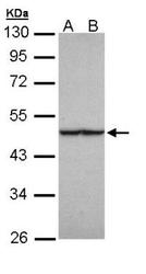 NBP1-31336 - Fumarase