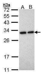 NBP1-31341 - Heme oxygenase 1 / HMOX1