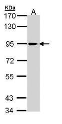 NBP1-31344 - PLA2G4A