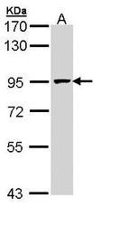 NBP1-31350 - MCM7