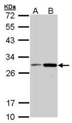 NBP1-31355 - NQO1