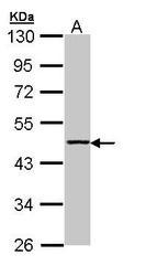 NBP1-31366 - Aminoacylase-1 / ACY1
