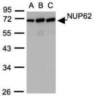 NBP1-31381 - NUP62