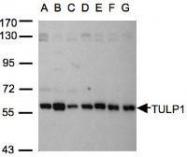 NBP1-31401 - TULP1