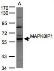 NBP1-31411 - JIP-2