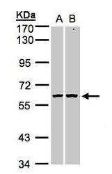 NBP1-31415 - PARP3