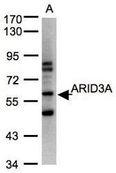 NBP1-31418 - ARID3A