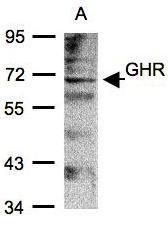 NBP1-31420 - Growth hormone receptor