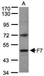 NBP1-31421 - Coagulation factor VII (F7)