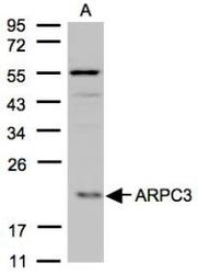 NBP1-31422 - ARPC3 / ARC21