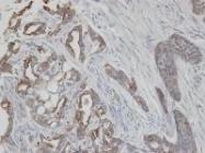 NBP1-31423 - Cytokeratin 2e