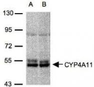 NBP1-31427 - CYP4A11