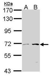 NBP1-31441 - CROT